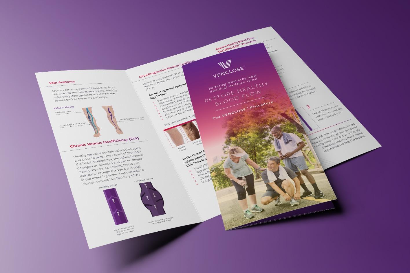 Venclose Procedure Brochure